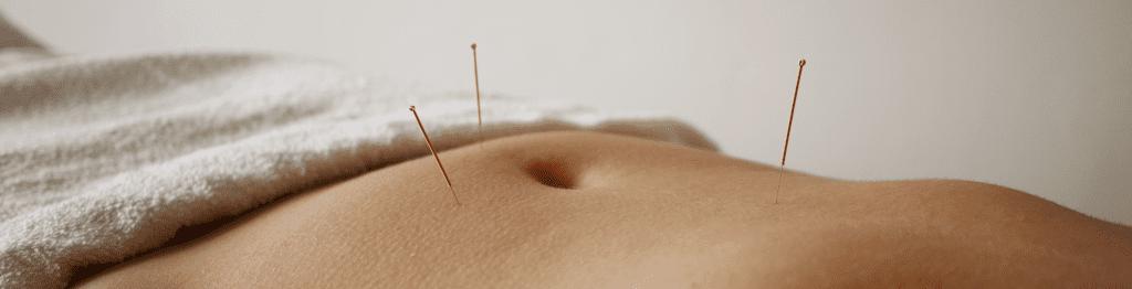 In de praktijk voor acupunctuur ziet u een buik met drie naalden rondom de buik